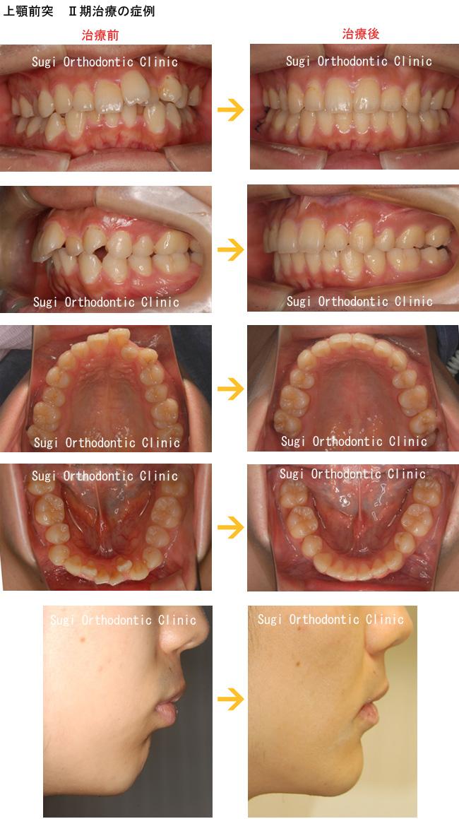 出っ歯(上顎前突)の症例