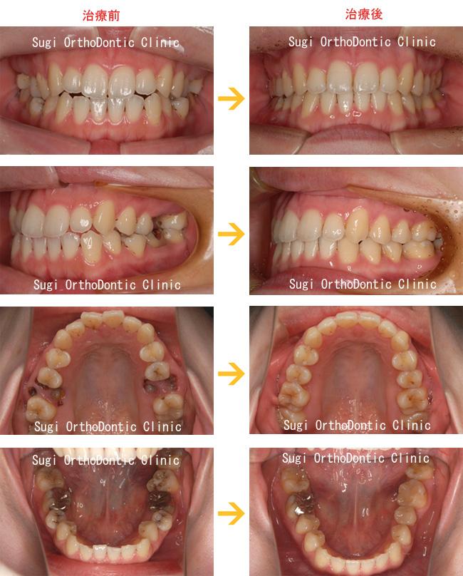 大臼歯喪失症例