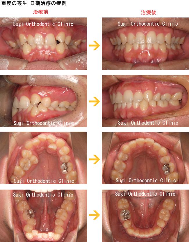 でこぼこ(叢生・八重歯)の症例
