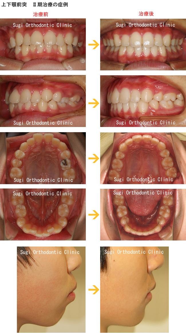 上下顎前突の症例